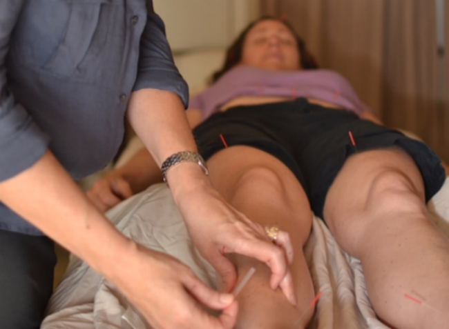 A patient receiving acupuncture treatment.