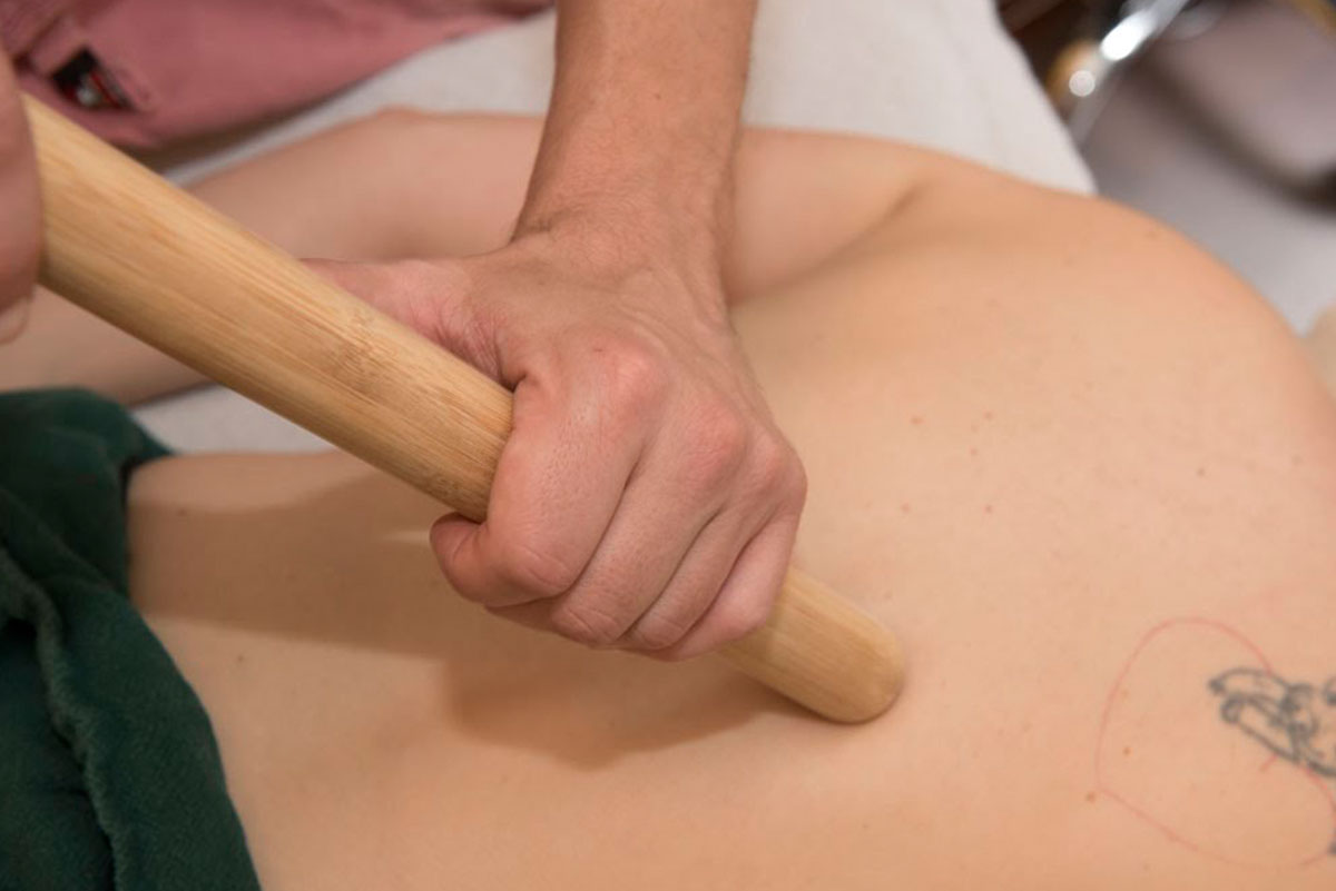 A massage therapist uses a bamboo tool to work on a client's back muscles