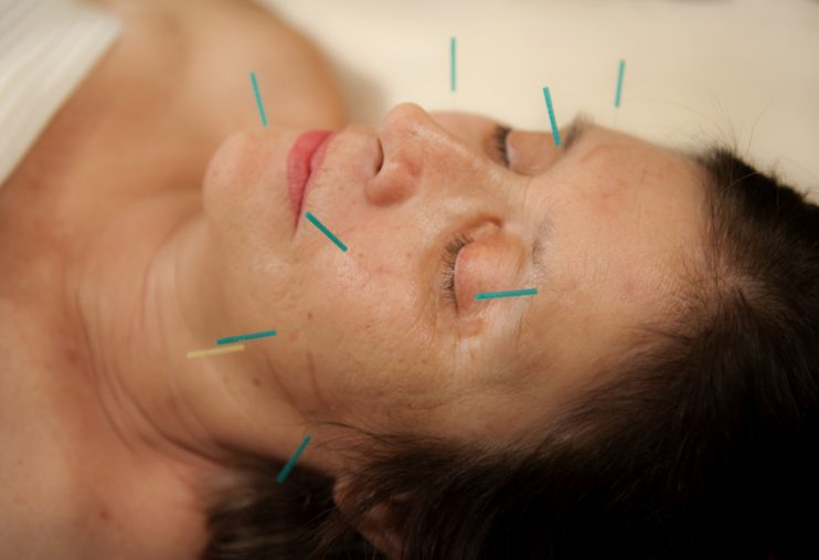 facial acupuncture, auriculotherapy, fertility acupuncture near me